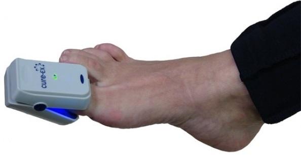 Cure Ex Nail Fungus Laser Treatment